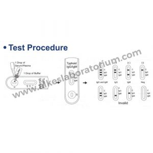 Jual Rapid Test Typhoid IgG IgM Cassete Accurate - Alkeslaboratorium (3)